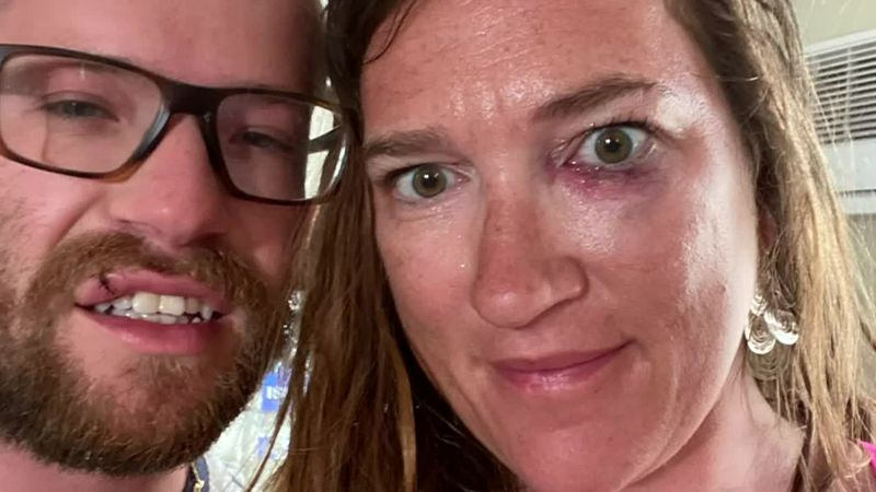 A New Hampshire couple was beaten while on vacation in Miami Beach.